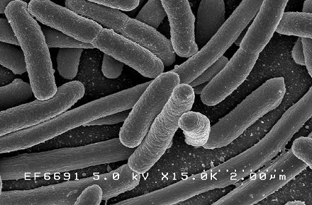 Food Safety: NSF-CMi update their E.coli Guidance Note